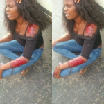 Nigerian lady thanks God as she survives car crash (Photos)